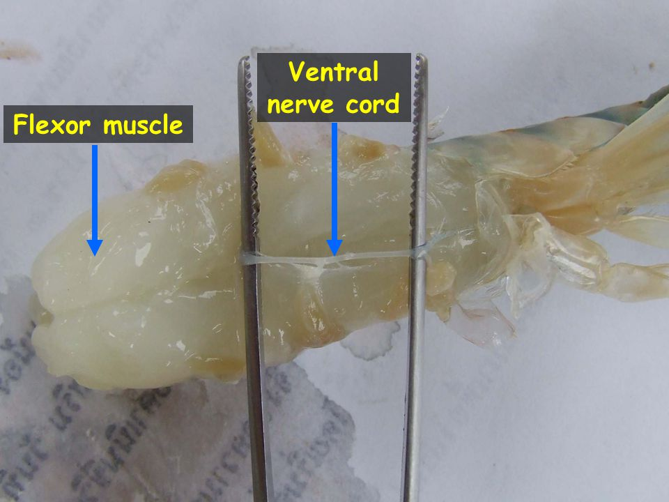 23 Thoracic ganglionic mass Ventral nerve cord Brain