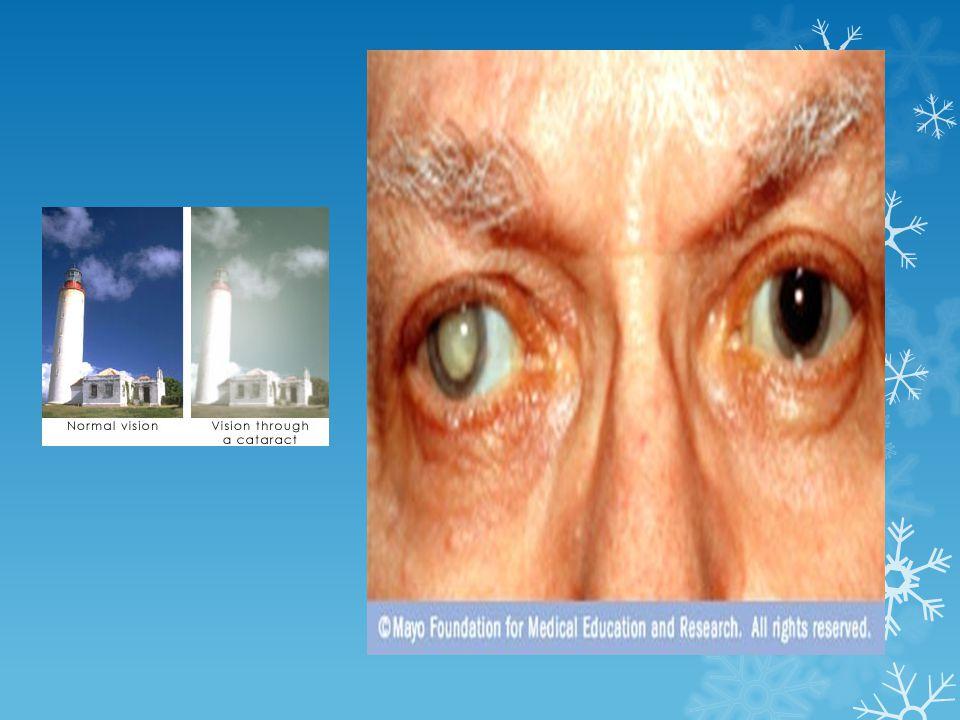 จอรับภาพเสื่อม ( จอ ประสาทตา ) (> 65 ปี ) จุดรับภาพ ที่ชัดที่สุด -------> ภาพบิด เบี้ยว มัวตรงกลาง ภาพ