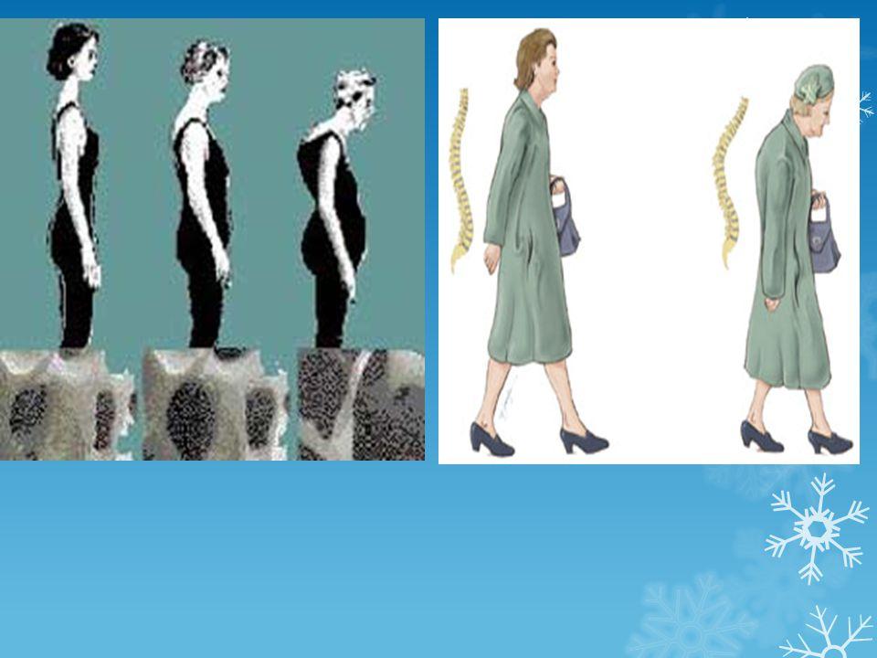 ระบบกล้ามเนื้อ ↓ ความแข็งแรงของ กล้ามเนื้อ ขาอ่อนแรง > แขน ส่วนต้นอ่อนแรง > ส่วนปลาย -----> ลุกจาก เก้าอี้ลำบาก หกล้มง่าย