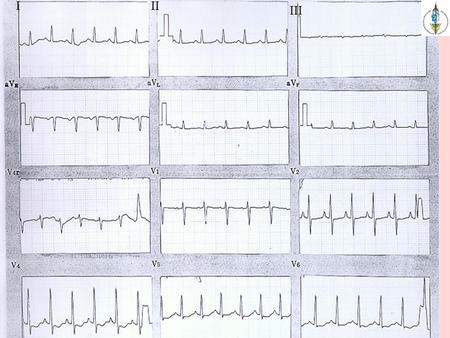 "III III. ทำไมเราต้องเรียน ""Pediatric ECG""? Arrhythmia diagnosis and management Provides clues for the diagnosis of CHD Indicative of other associated."