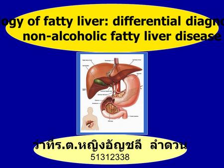 Pathology of fatty liver: differential diagnosis of non-alcoholic fatty liver disease ว่าที่ร. ต. หญิงอัญชลี ลำดวน 51312338.