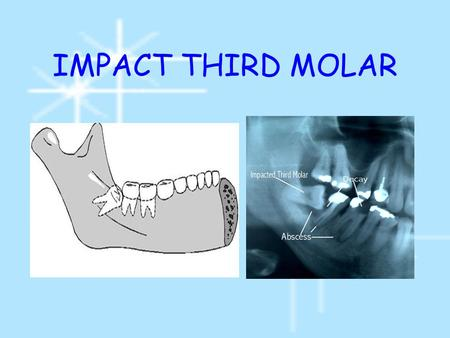 IMPACT THIRD MOLAR. Etiology 1.Orthodontic theory 2.Phylogenic theory 3.Mendelian theory 4.Systemic theory.