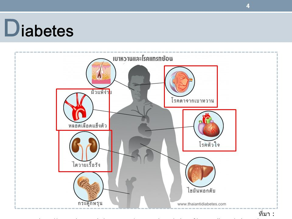 Diabetes ที่มา : http://www.thaiantidiabetes.com/ name=knowledge&file=readknowledge&id=281