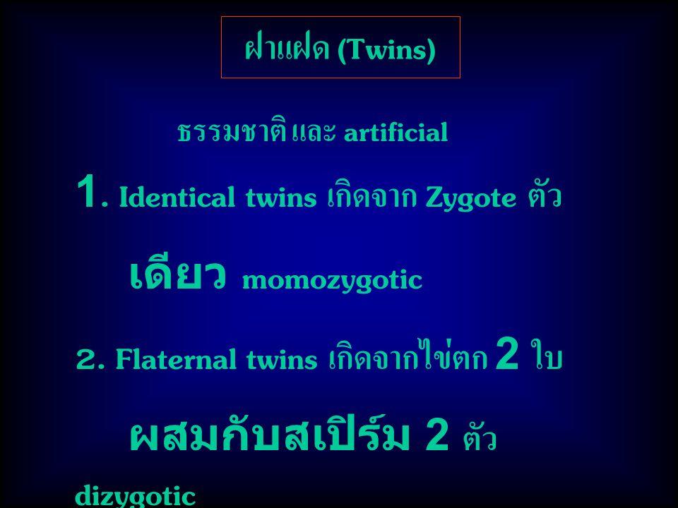 1. Identical twins เกิดจาก Zygote ตัว เดียว momozygotic