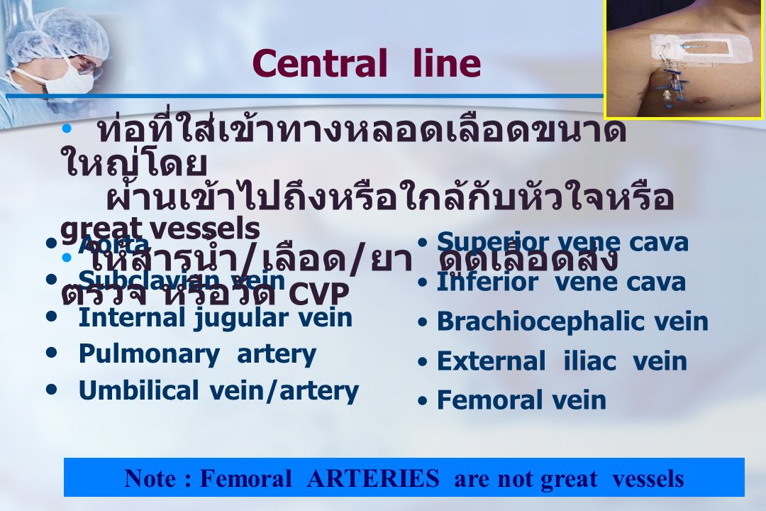 Note : Femoral ARTERIES are not great vessels