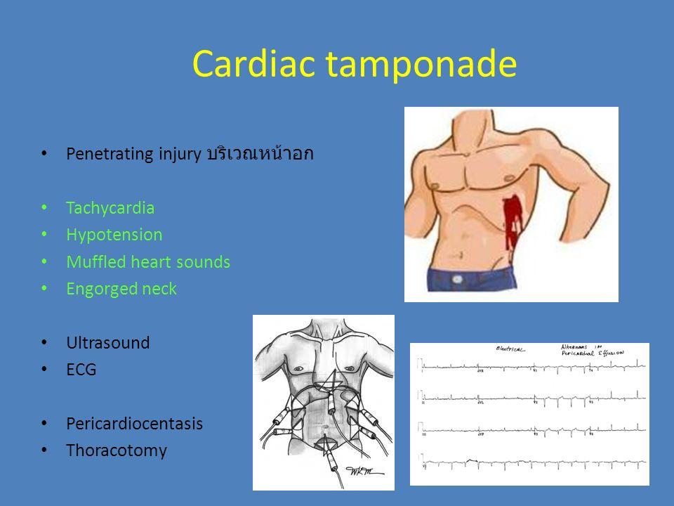 Cardiac tamponade Penetrating injury บริเวณหน้าอก Tachycardia