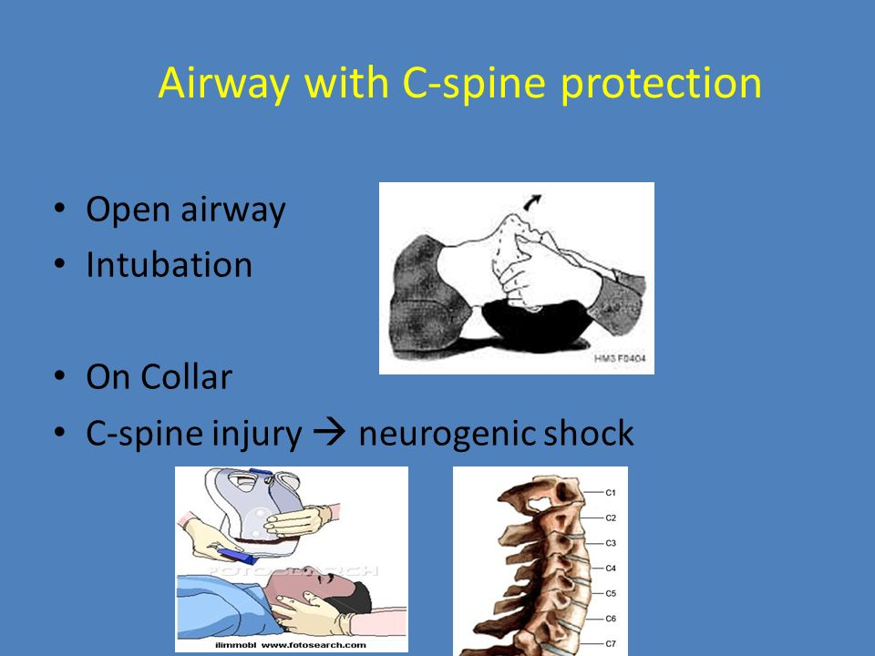 Airway with C-spine protection
