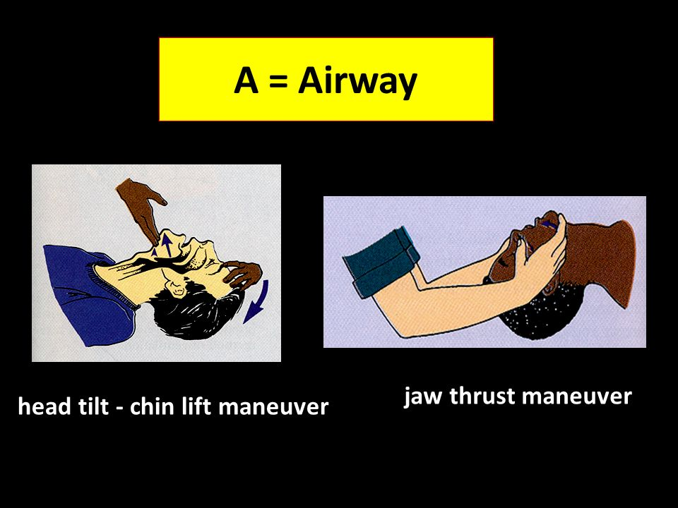 A = Airway jaw thrust maneuver head tilt - chin lift maneuver