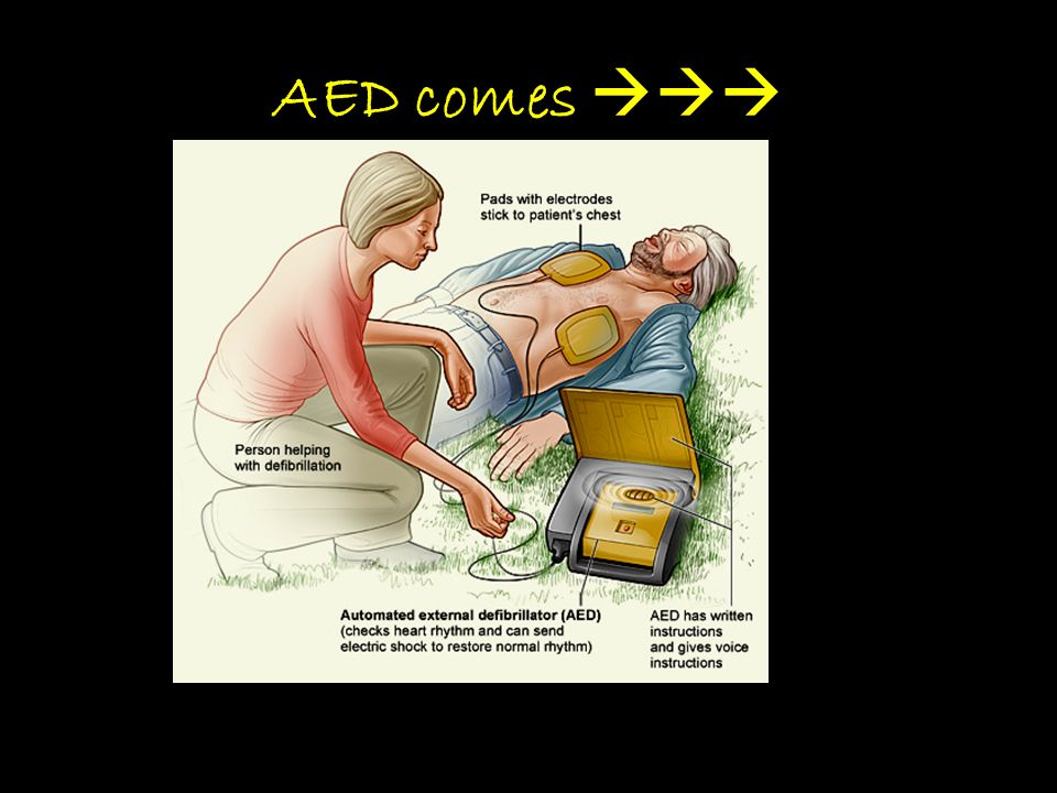 AED comes 