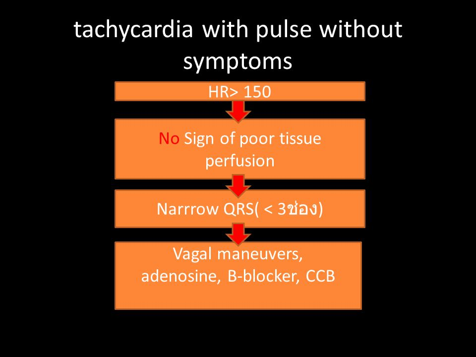 tachycardia with pulse without symptoms