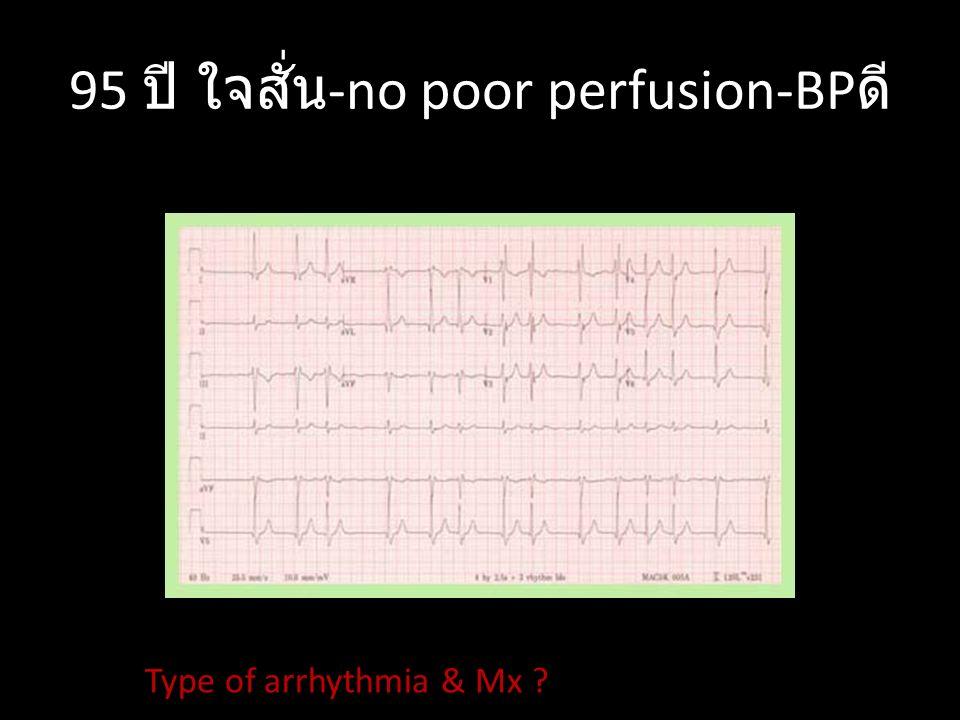 95 ปี ใจสั่น-no poor perfusion-BPดี