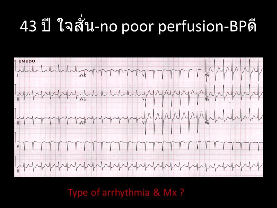 43 ปี ใจสั่น-no poor perfusion-BPดี
