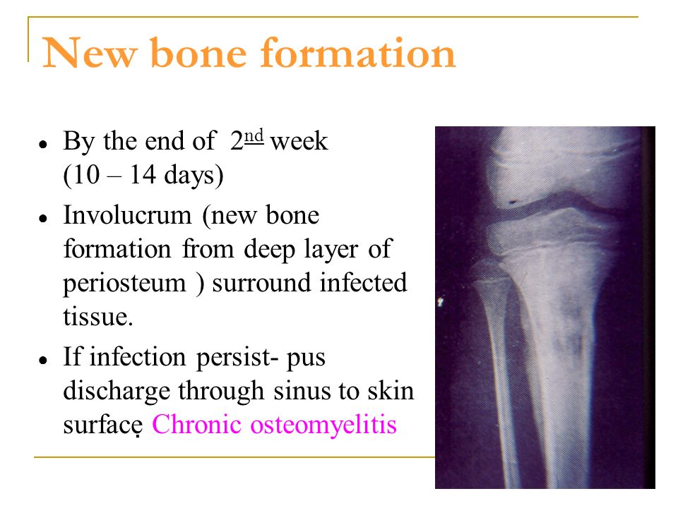 New bone formation By the end of 2nd week (10 – 14 days)