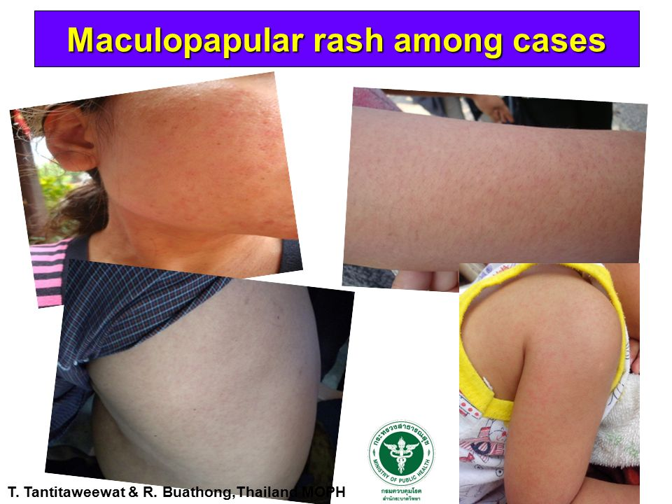 Maculopapular rash among cases