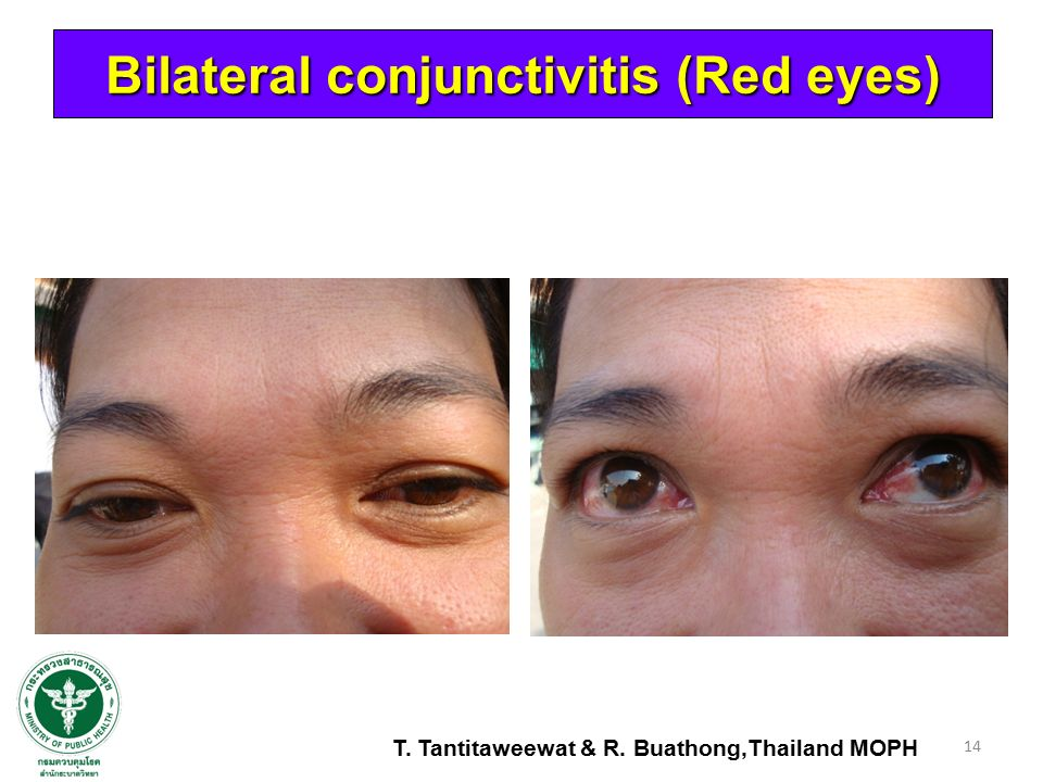 Bilateral conjunctivitis (Red eyes)