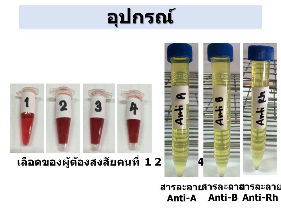 อุปกรณ์ เลือดของผู้ต้องสงสัยคนที่ 1 2 3 และ 4 สารละลาย Anti-A สารละลาย