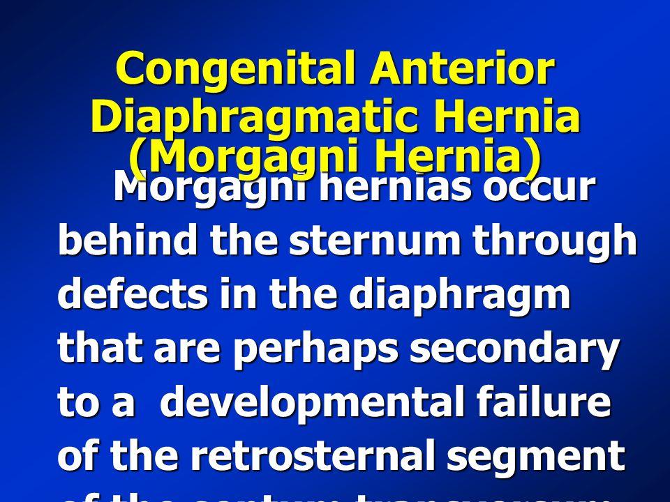 Congenital Anterior Diaphragmatic Hernia