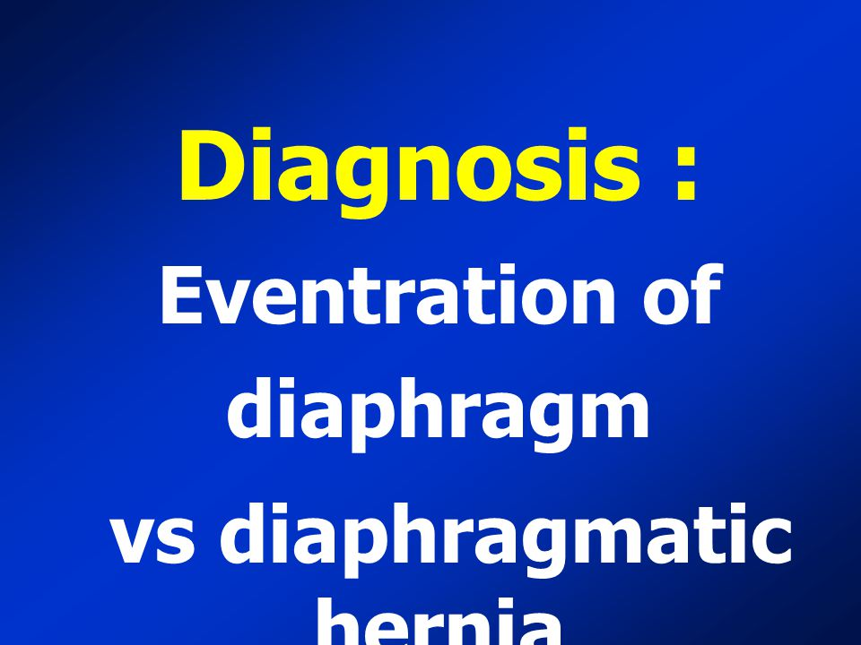 Eventration of diaphragm vs diaphragmatic hernia