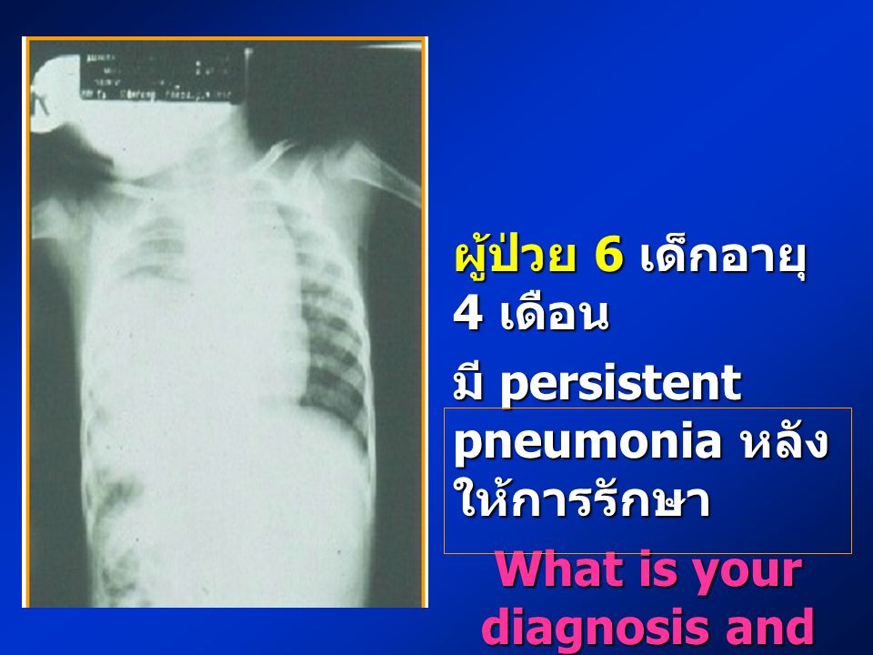 What is your diagnosis and plan of management