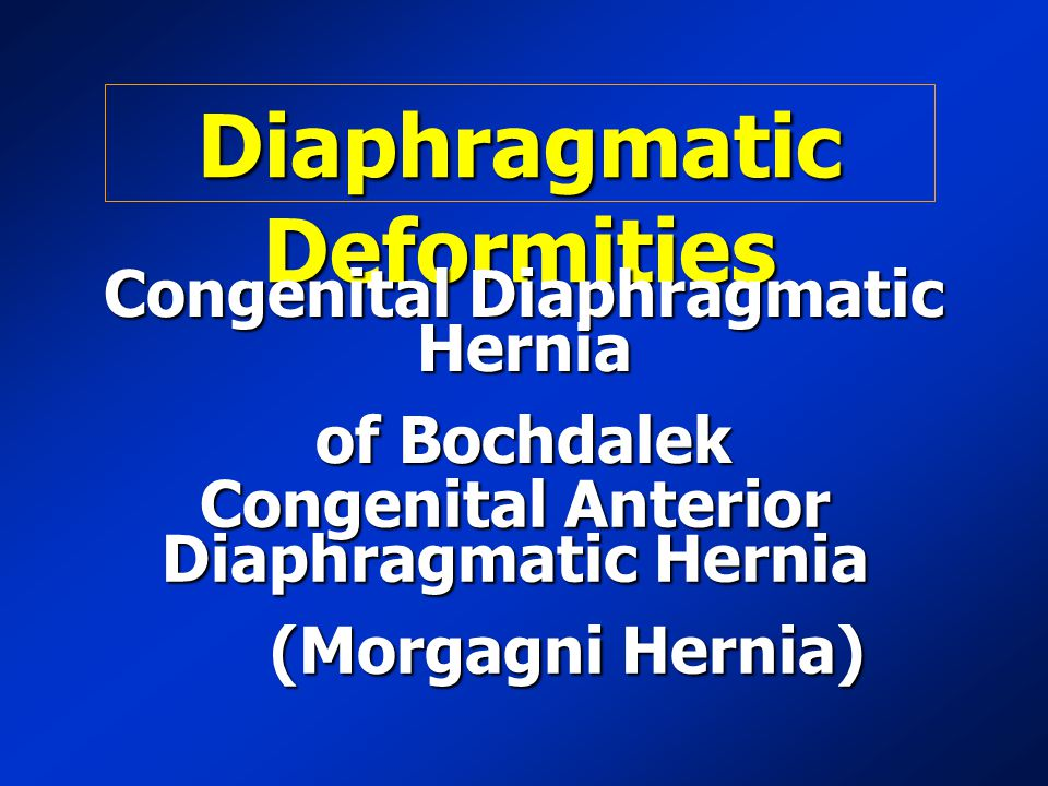 Diaphragmatic Deformities