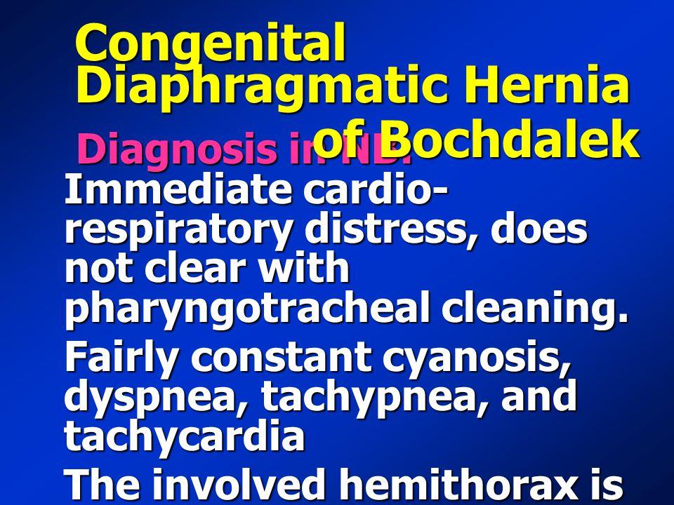 Congenital Diaphragmatic Hernia of Bochdalek