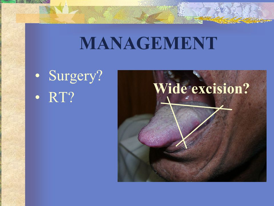 MANAGEMENT Surgery RT Wide excision