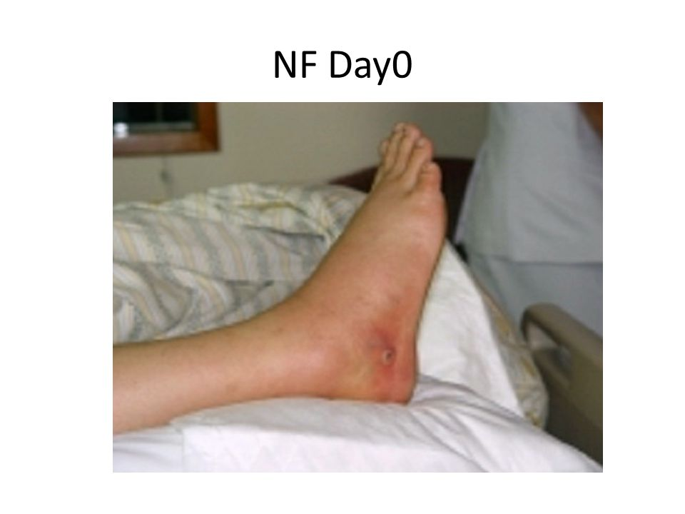 NF Day0