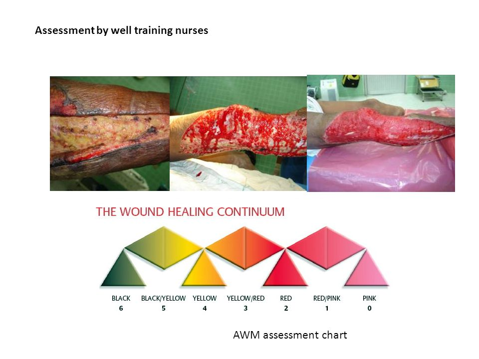 Assessment by well training nurses