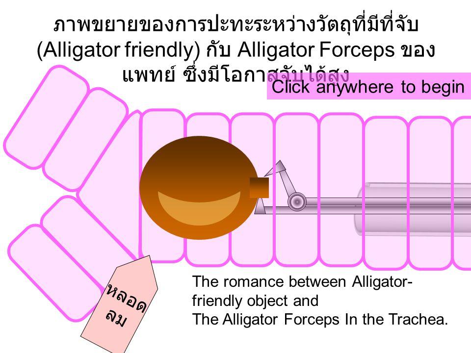 ภาพขยายของการปะทะระหว่างวัตถุที่มีที่จับ (Alligator friendly) กับ Alligator Forceps ของแพทย์ ซึ่งมีโอกาสจับได้สูง
