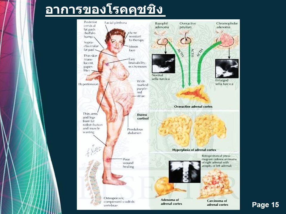 อาการของโรคคุชชิง