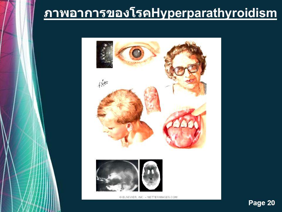 ภาพอาการของโรคHyperparathyroidism