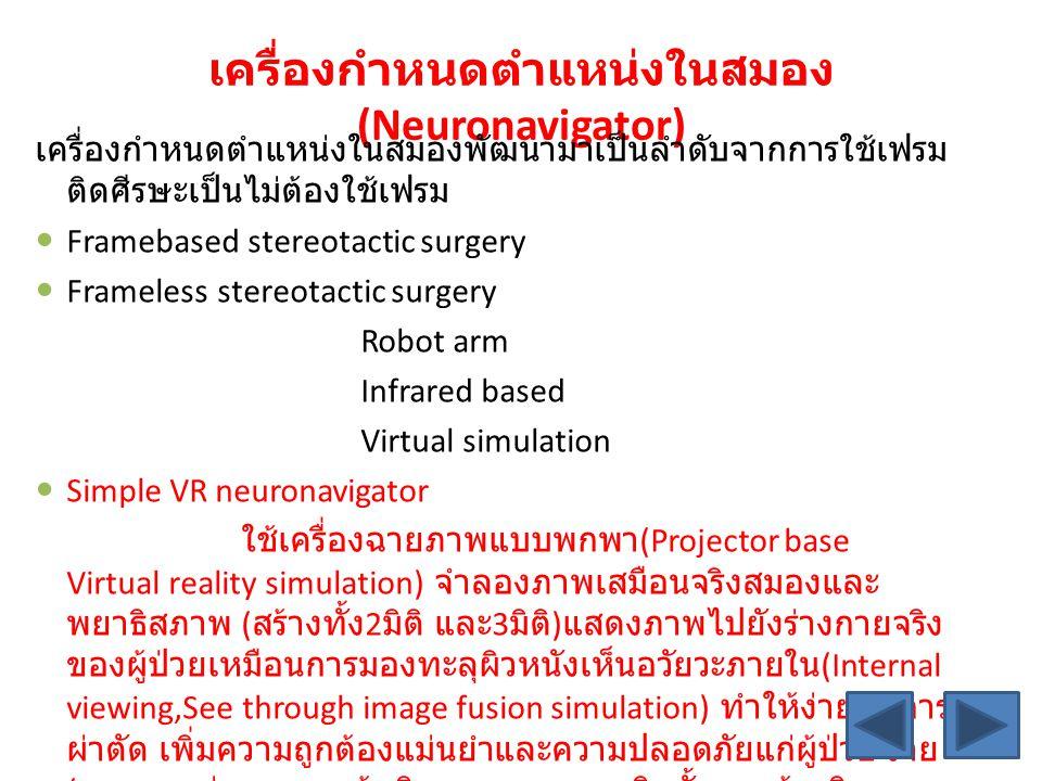 เครื่องกำหนดตำแหน่งในสมอง(Neuronavigator)