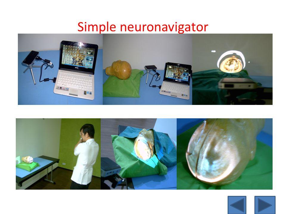 Simple neuronavigator