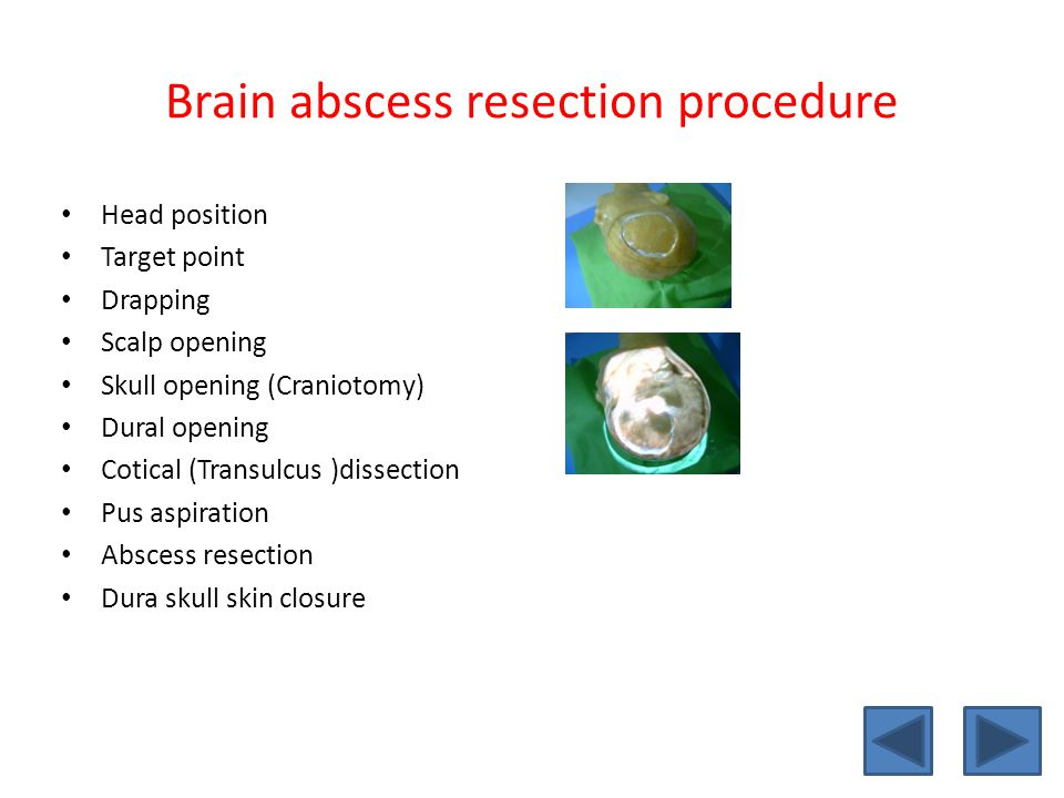 Brain abscess resection procedure