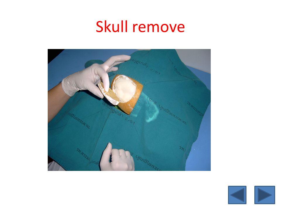 Skull remove