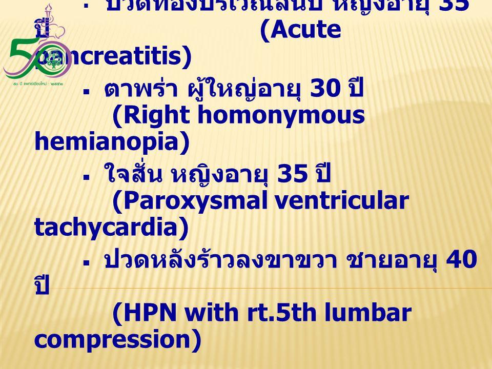 ซ้อมสอบ OSCE หมวด Physical examination ■ ปวดท้องบริเวณลิ้นปี่ หญิงอายุ 35 ปี (Acute pancreatitis)