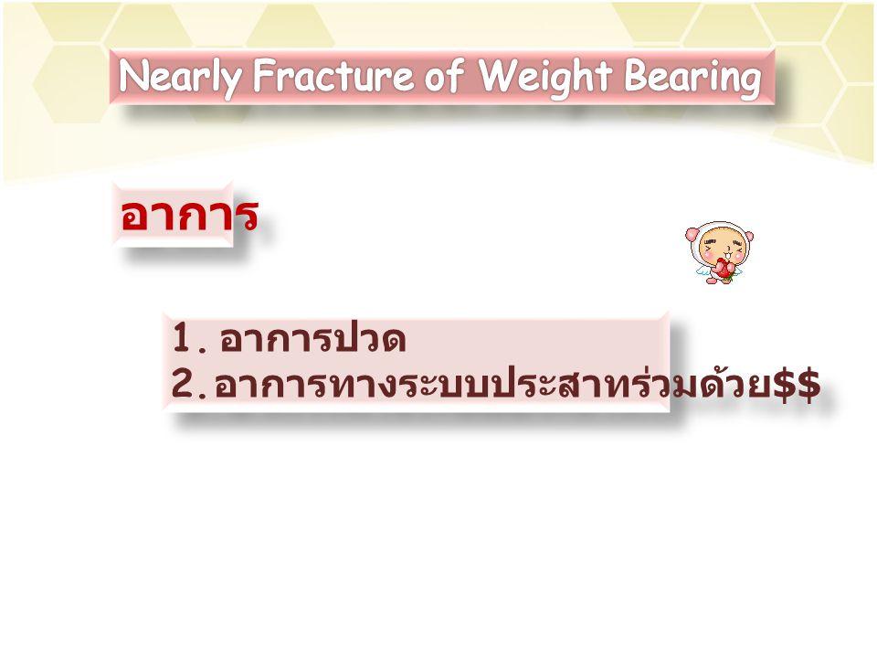อาการ Nearly Fracture of Weight Bearing อาการปวด