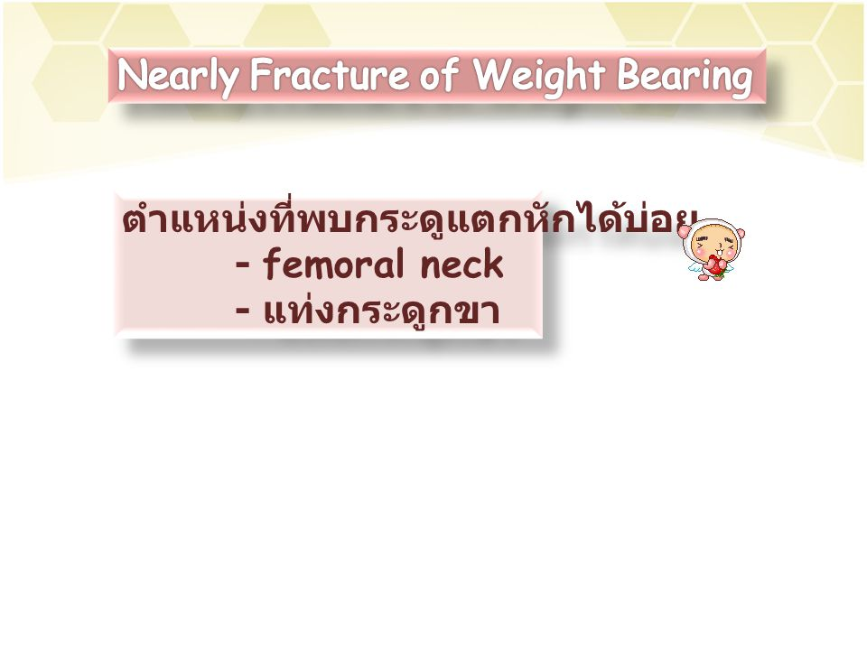 Nearly Fracture of Weight Bearing