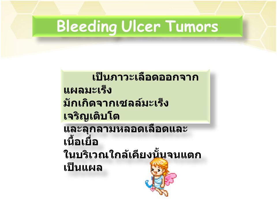 Bleeding Ulcer Tumors เป็นภาวะเลือดออกจากแผลมะเร็ง