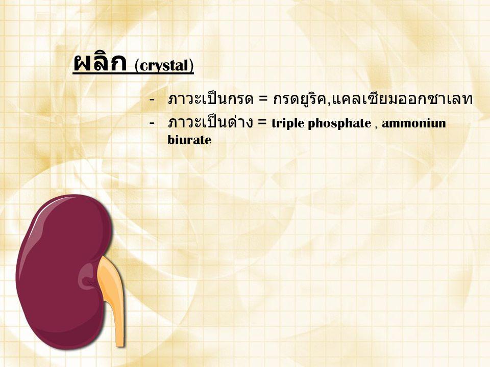 ผลิก (crystal) ภาวะเป็นกรด = กรดยูริค,แคลเซียมออกซาเลท