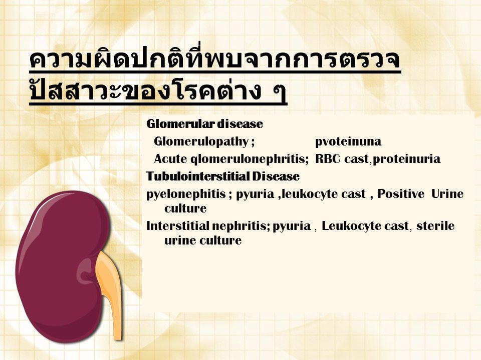 ความผิดปกติที่พบจากการตรวจ ปัสสาวะของโรคต่าง ๆ