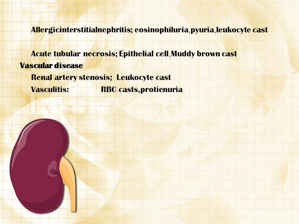 Allergicinterstitialnephritis; eosinophiluria,pyuria,leukocyte cast
