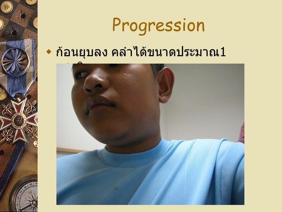 Progression ก้อนยุบลง คลำได้ขนาดประมาณ1เซนติเมตร