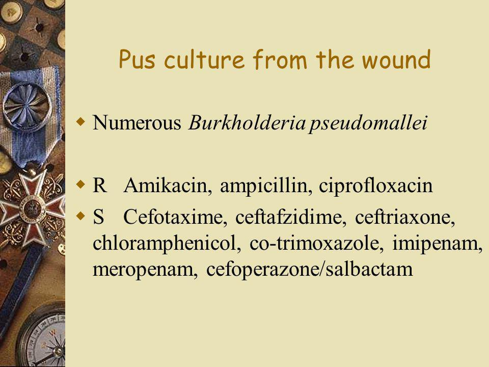 Pus culture from the wound