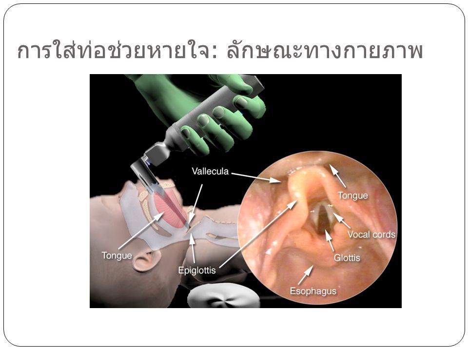 การใส่ท่อช่วยหายใจ: ลักษณะทางกายภาพ