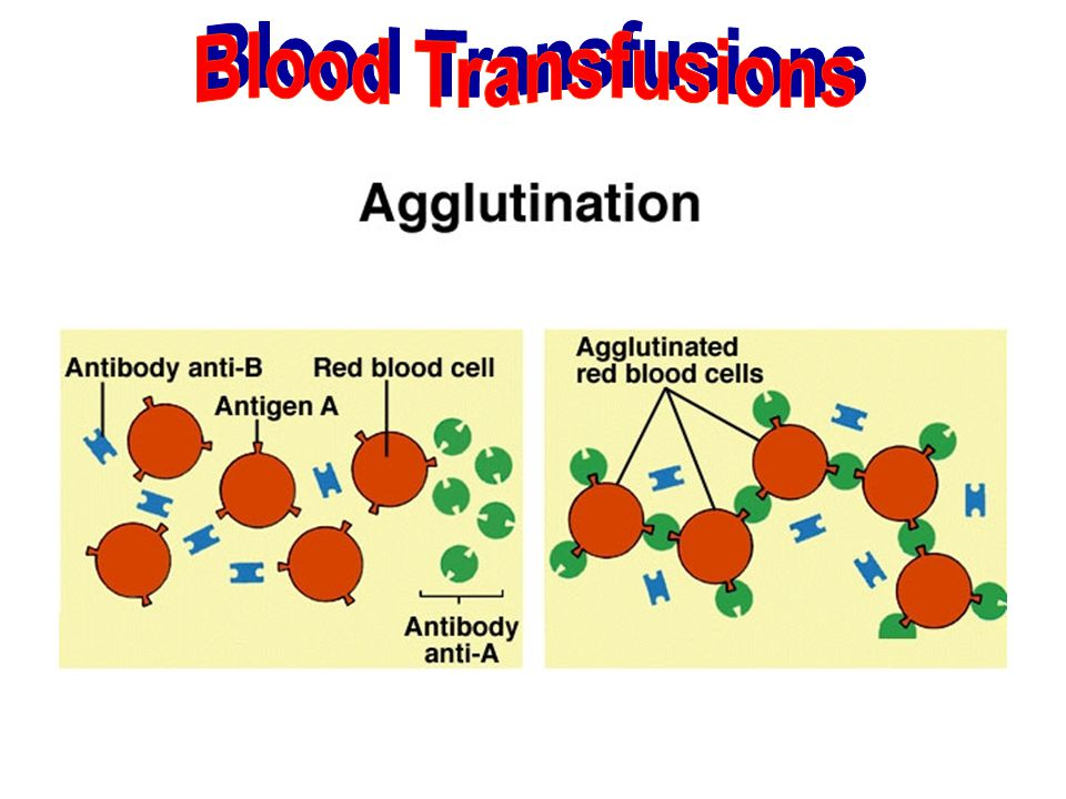 Blood Transfusions