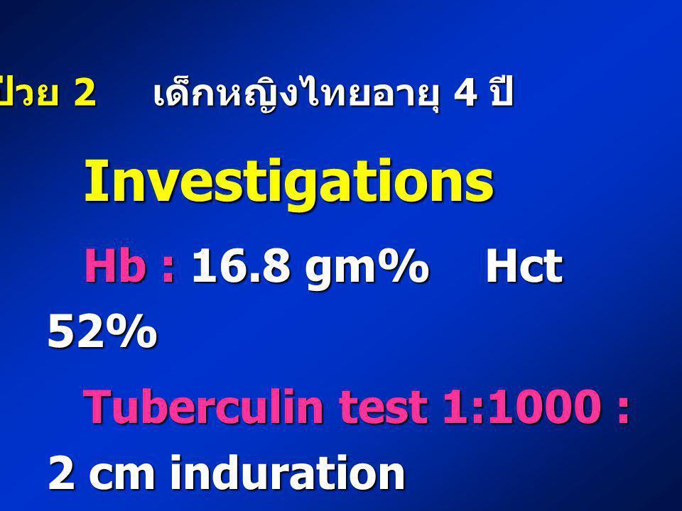ผู้ป่วย 2 เด็กหญิงไทยอายุ 4 ปี