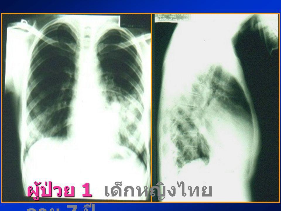 ผู้ป่วย 1 เด็กหญิงไทย อายุ 7 ปี