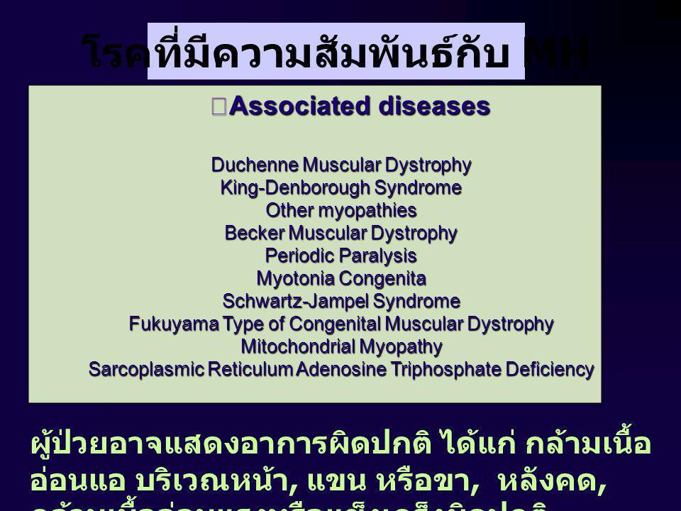 โรคที่มีความสัมพันธ์กับ MH