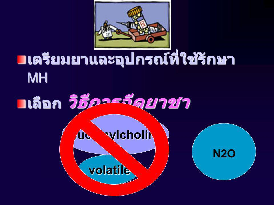 N2O เตรียมยาและอุปกรณ์ที่ใช้รักษา MH เลือก วิธีการฉีดยาชา